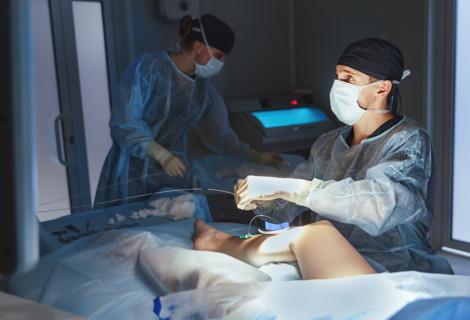 Którazmetod leczenia żylaków jest najskuteczniejsza?