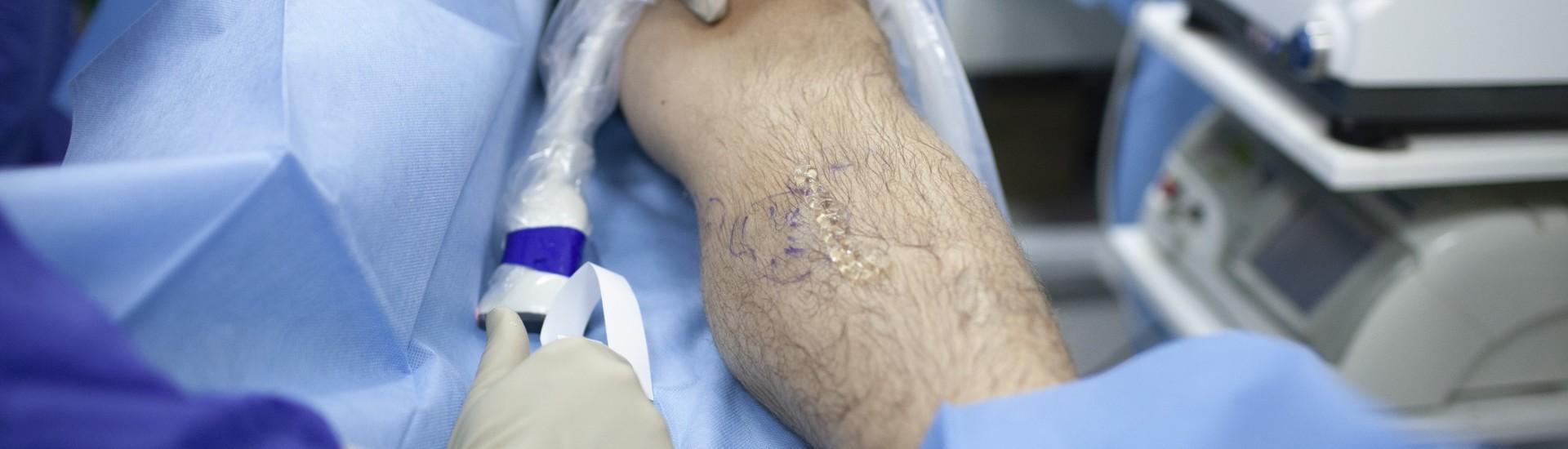 laserowe leczenie zylakow