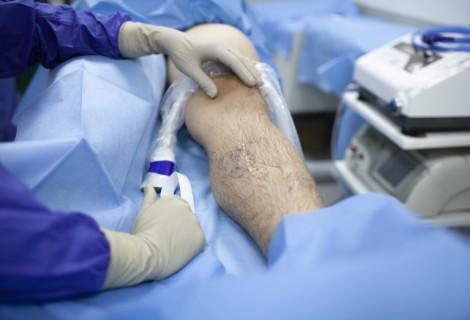 Laserowe leczenie żylaków – jak wygląda zabieg?
