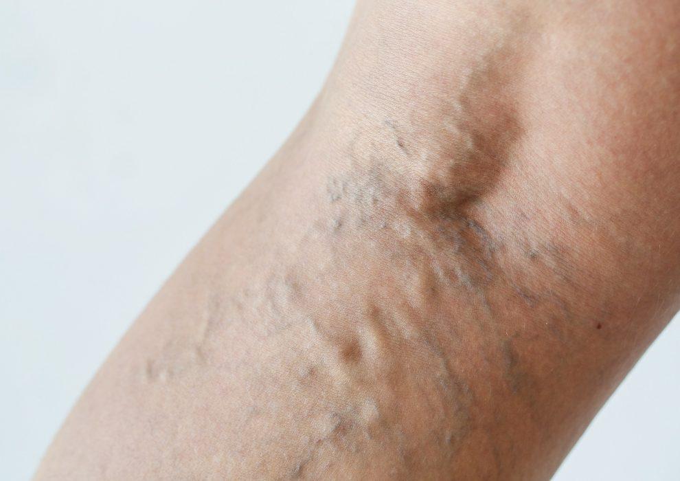Żylaki nóg – przyczyny, objawy, leczenie
