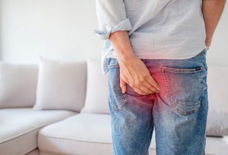 Krwawiące hemoroidy – operacja, usuwanie czydomowe sposoby?