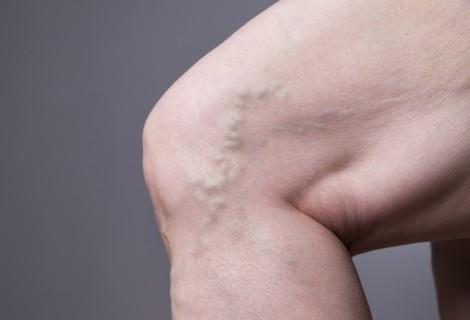 Niewydolność żylna kończyn dolnych – przyczyny, objawy ileczenie