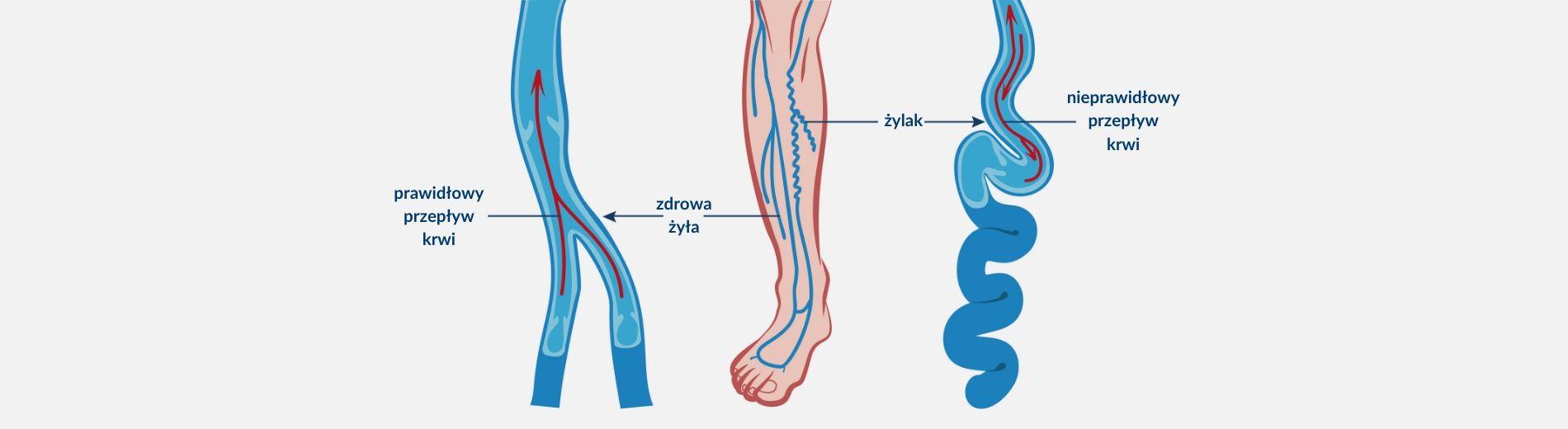 żylak kończyny dolnej